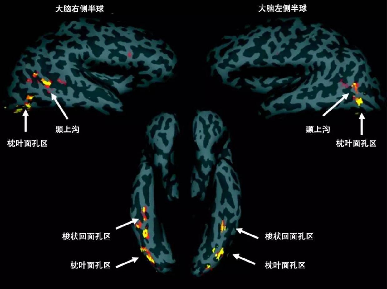大脑中和面孔识别有关的区域